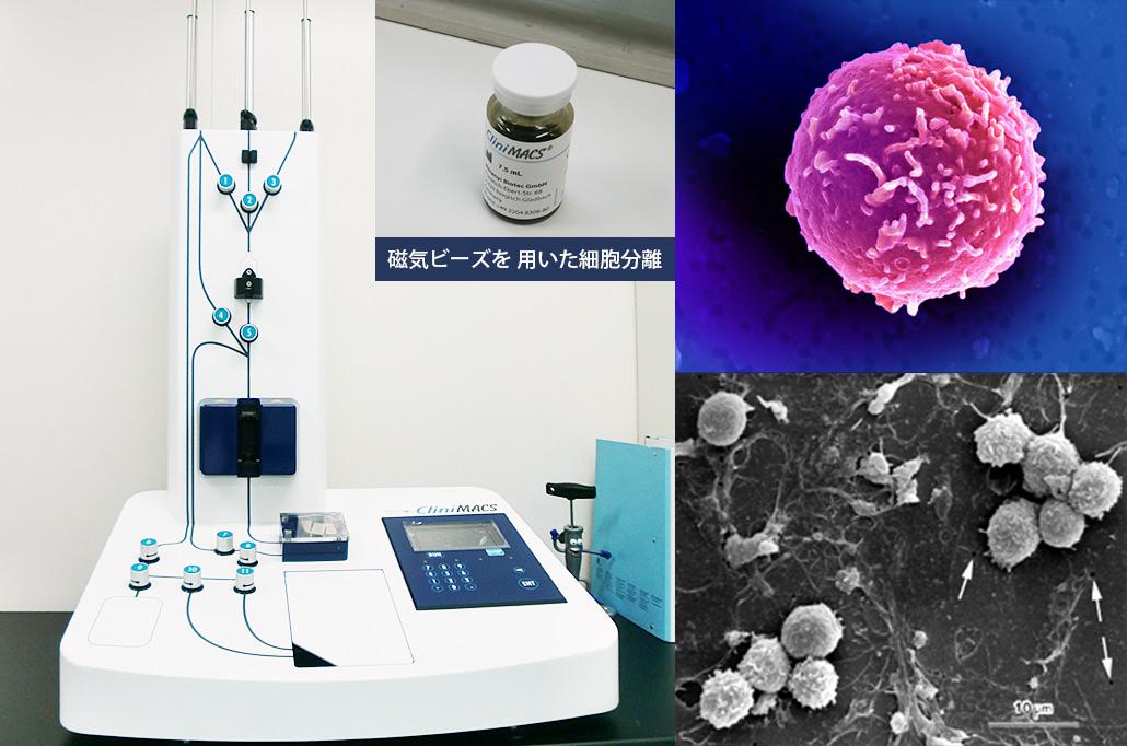CD34陽性細胞分離